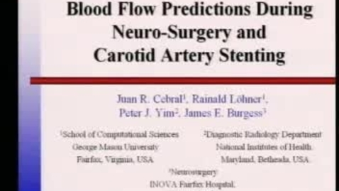 Thumbnail for entry Blood Flow Predictions During Neuro-Surgery and Carotid Artery Stenting