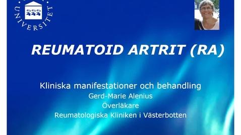 Miniatyr för inlägg Reumatoid artrit Gerd-Marie Alenius