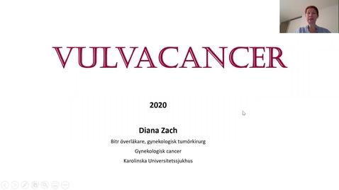 Thumbnail for entry Presentation Vulvacancer Zach Svenska 2020 Del 1
