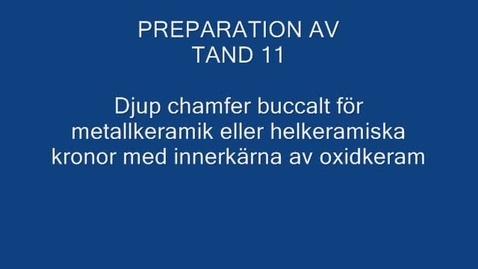 Thumbnail for entry Preparation av chamfer