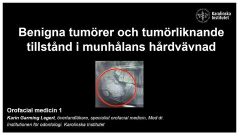 Thumbnail for entry F10. Benigna tumörer och tumörliknande tillstånd i munhålans mjukvävnad. Inspelad