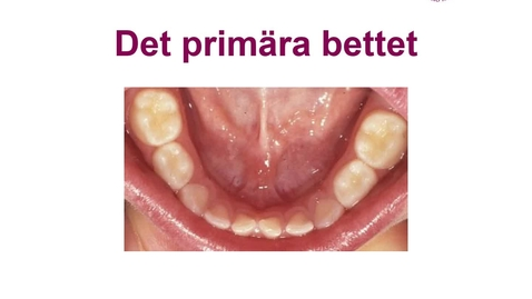 Thumbnail for entry DFSM Det primära bettet 20-11-11