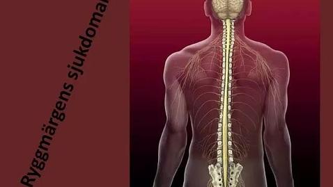 Miniatyr för inlägg Ryggmärgens sjukdomar