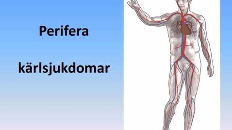 Miniatyr för inlägg Perifera kärlsjukdomar