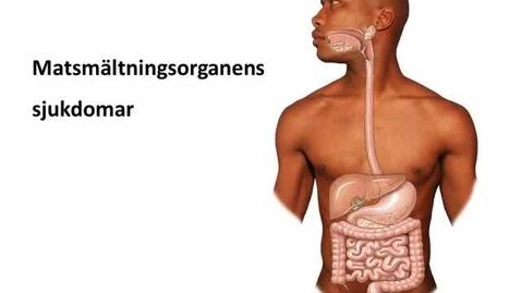 Miniatyr för inlägg Matsmältningsorganens sjukdomar