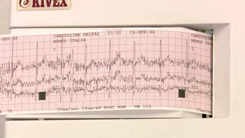 Thumbnail for entry EKG-ØVELSE - EKG apparatet